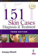 151  Skin Cases Diagnosis and Treatment