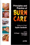 Principles and Practice of Burn Care