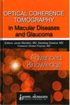 Optical Coherence Tomography in Macular Diseases and Glaucoma