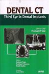 Dental CT Third Eye in Dental Implants