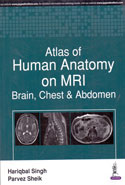 Atlas of Human Anatomy on MRI Brain Chest and Abdomen