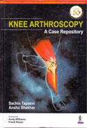 Knee Arthroscopy A Case Repository
